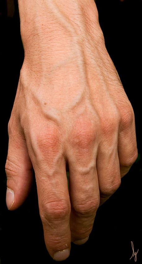 La thrombose des vaisseaux coronaires du coeur